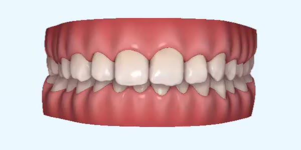clear braces