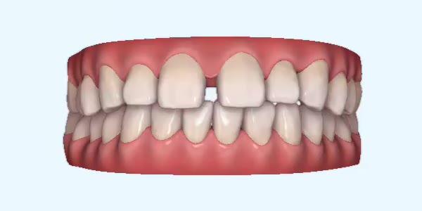 Gapped_Teeth2 Rye