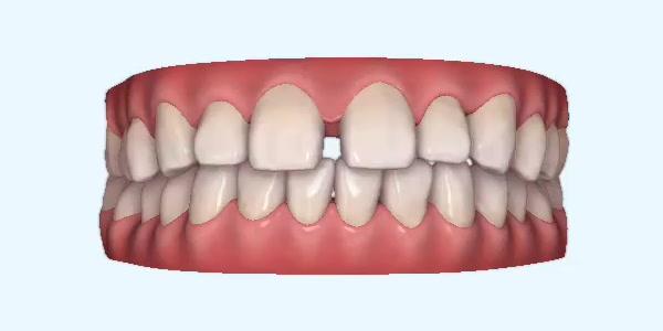 Gapped_Teeth4 Rye
