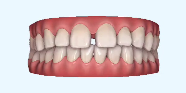 Gapped_Teeth5 Rye