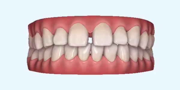 Gapped_Teeth6 Rye