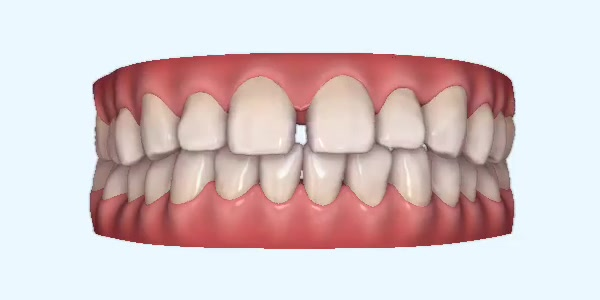 Gapped_Teeth7 Rye