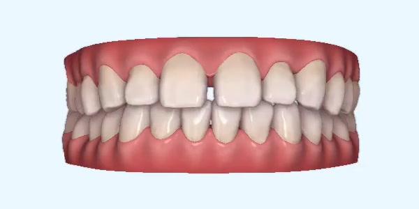 Gapped_Teeth9 Rye