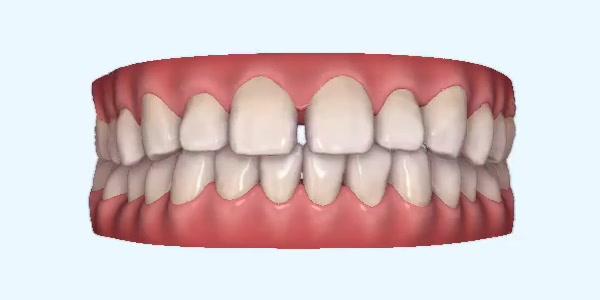 Gapped_Teeth10 Rye
