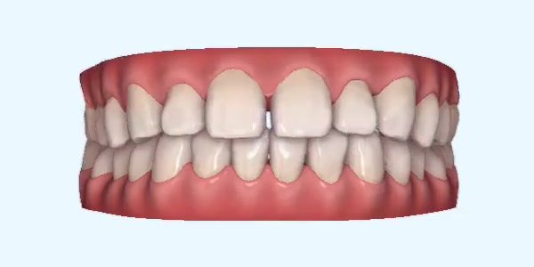 Gapped_Teeth12 Rye