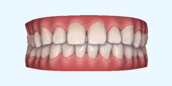 Gapped_Teeth15 Rye