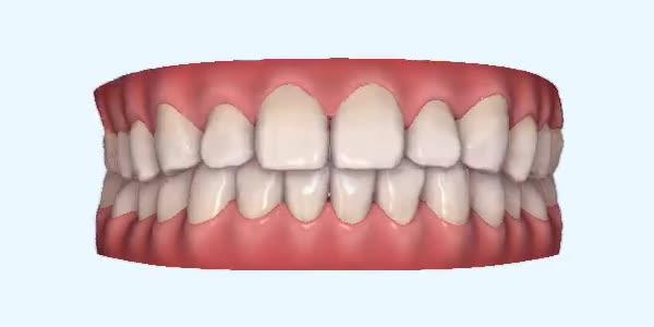 Gapped_Teeth18 Rye