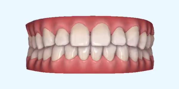 Gapped_Teeth19 Rye